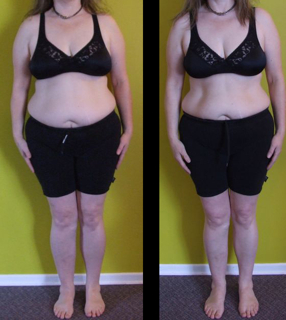 Rosie odonnell weight loss surgery doctor